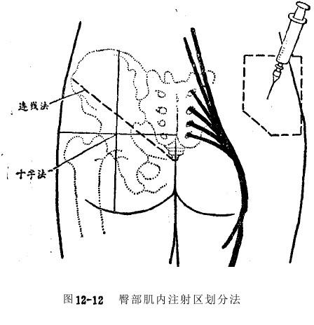 臀中肌和臀小肌的定位图片_肌肉注射法-永驻青春-搜狐博客